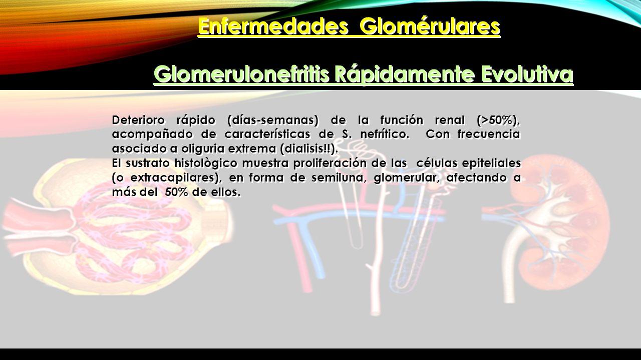 Enfermedades Glomérulares Glomerulonefritis Rápidamente Evolutiva Deterioro rápido (días-semanas) de la función renal (>50%), acompañado de caracterís