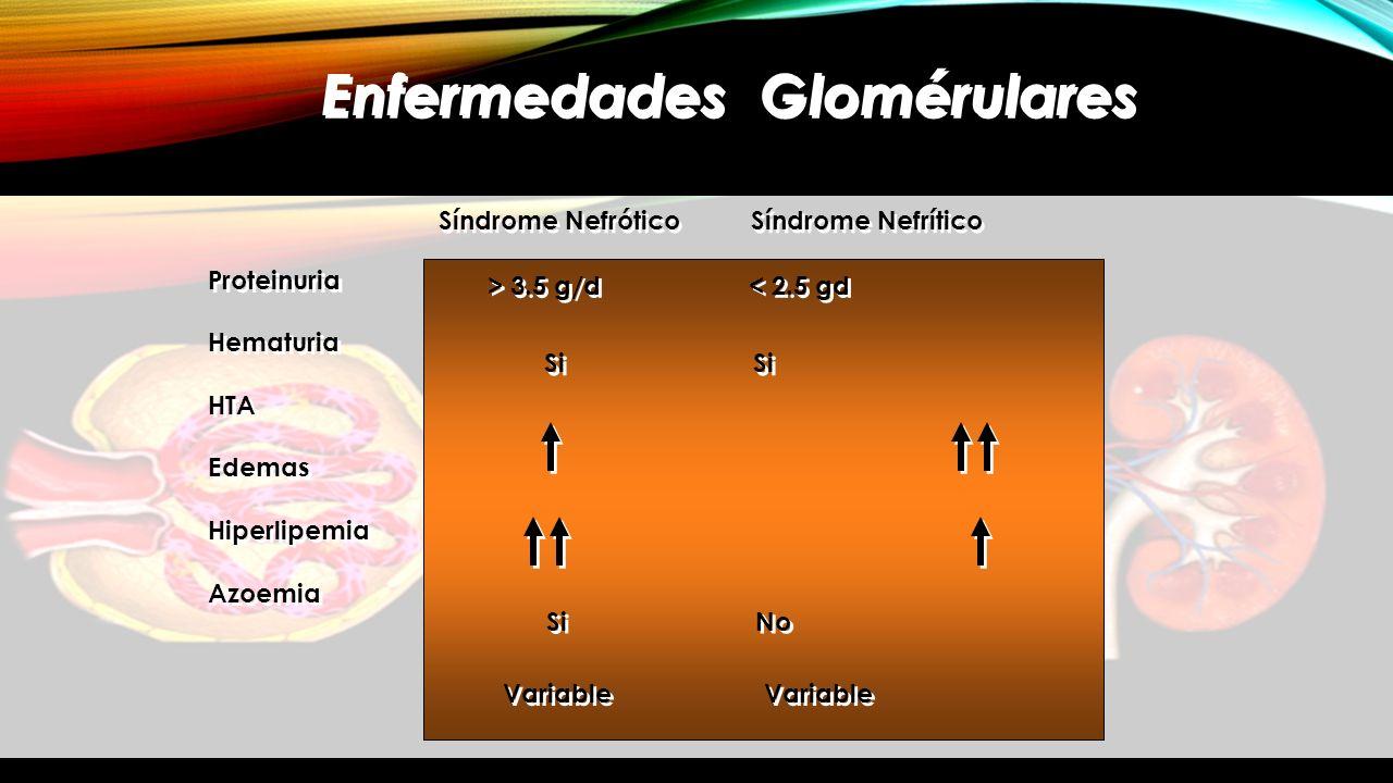 Enfermedades Glomérulares Síndrome Nefrótico Síndrome Nefrítico Proteinuria Hematuria HTA Edemas Hiperlipemia Azoemia Proteinuria Hematuria HTA Edemas