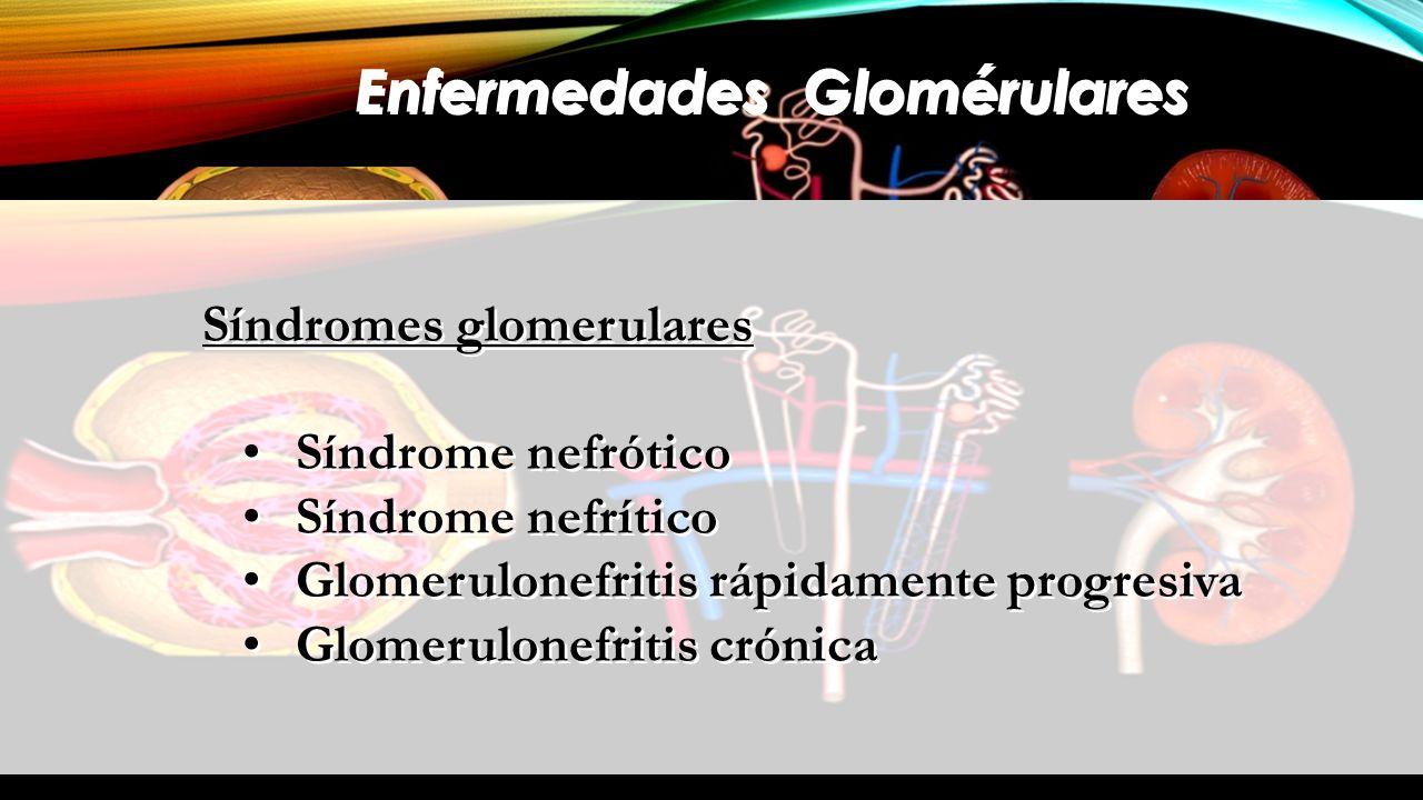 Enfermedades Glomérulares Síndromes glomerulares Síndrome nefrótico Síndrome nefrítico Glomerulonefritis rápidamente progresiva Glomerulonefritis crón
