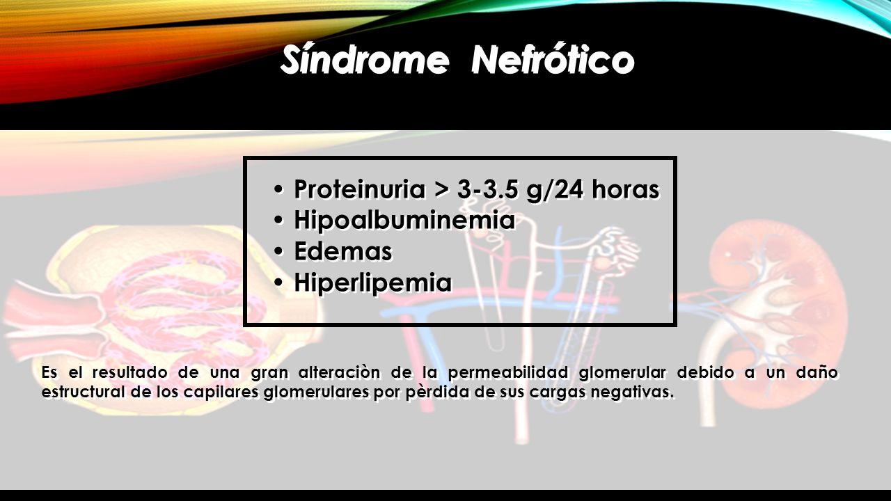Síndrome Nefrótico Proteinuria > 3-3.5 g/24 horas Hipoalbuminemia Edemas Hiperlipemia Proteinuria > 3-3.5 g/24 horas Hipoalbuminemia Edemas Hiperlipem