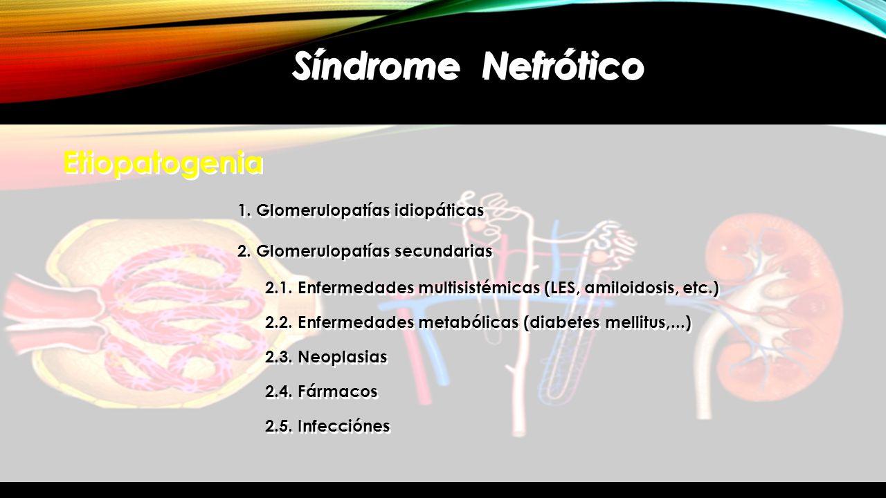 Síndrome Nefrótico Etiopatogenia 1. Glomerulopatías idiopáticas 2. Glomerulopatías secundarias 2.1. Enfermedades multisistémicas (LES, amiloidosis, et