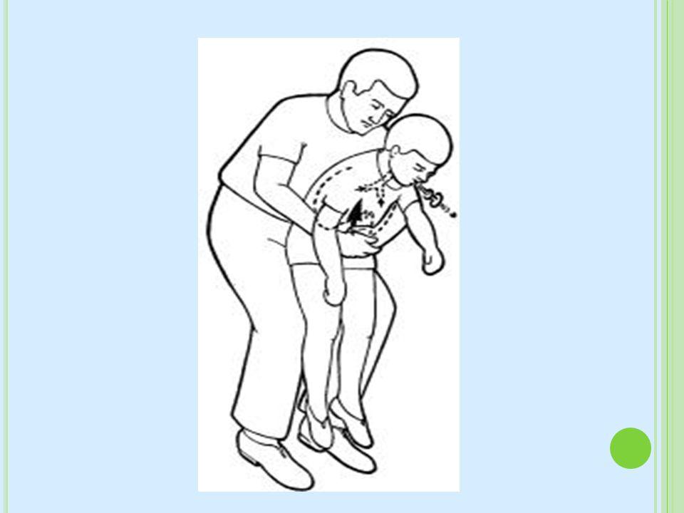 · Maniobra de expulsión de cuerpo extraño en niños (Maniobra de Heimlich)
