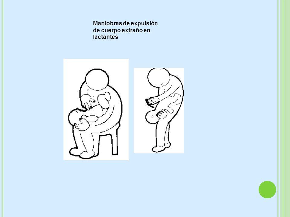 · Maniobras de expulsión de cuerpo extraño en lactantes Maniobras de expulsión de cuerpo extraño en lactantes