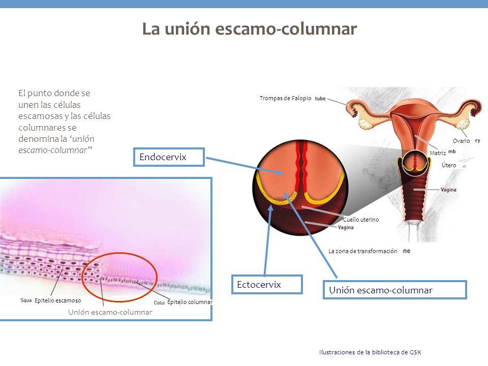 La unión escamo-columnar El punto donde se unen las células escamosas y las células columnares se denomina la unión escamo-columnar' Ectocervix Endoce