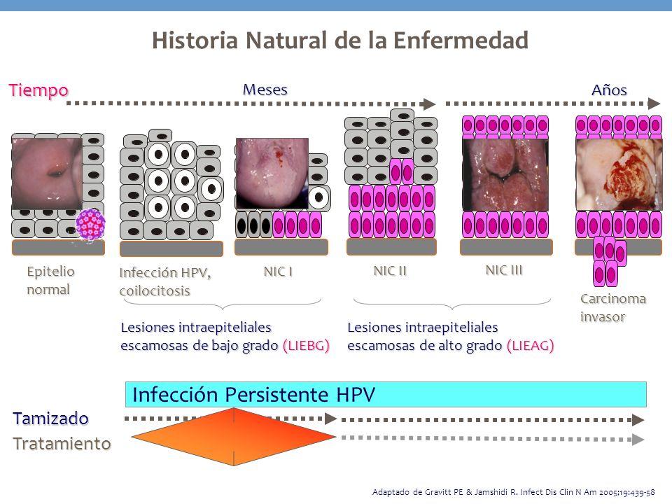 Historia Natural de la Enfermedad Tamizado Tratamiento Infección Persistente HPV Adaptado de Gravitt PE & Jamshidi R. Infect Dis Clin N Am 2005;19:439