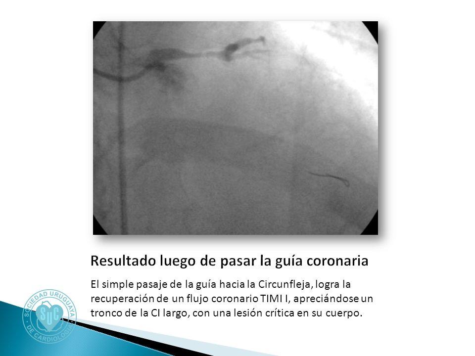 El simple pasaje de la guía hacia la Circunfleja, logra la recuperación de un flujo coronario TIMI I, apreciándose un tronco de la CI largo, con una lesión crítica en su cuerpo.