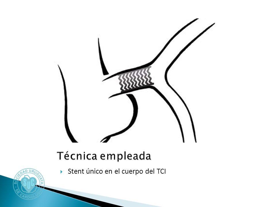 Stent único en el cuerpo del TCI