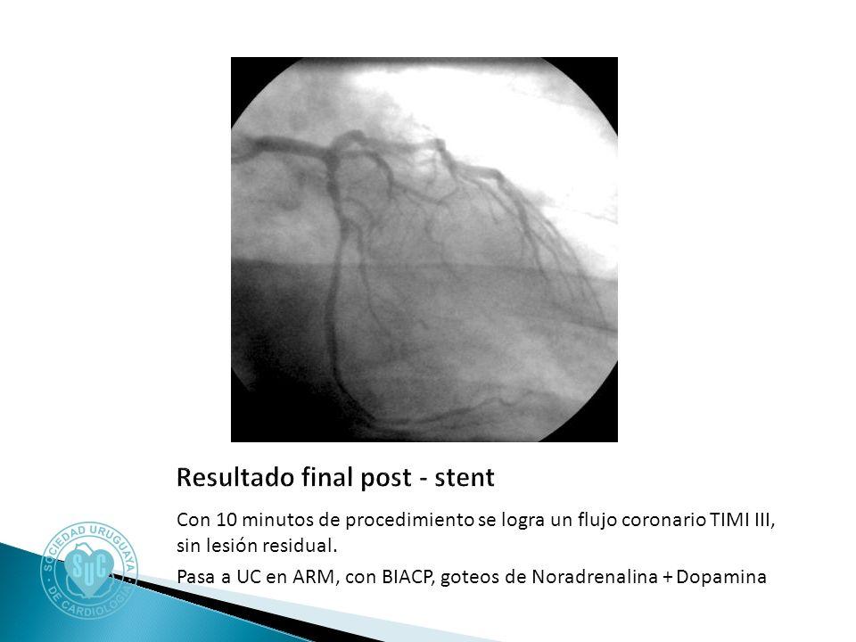 Con 10 minutos de procedimiento se logra un flujo coronario TIMI III, sin lesión residual.