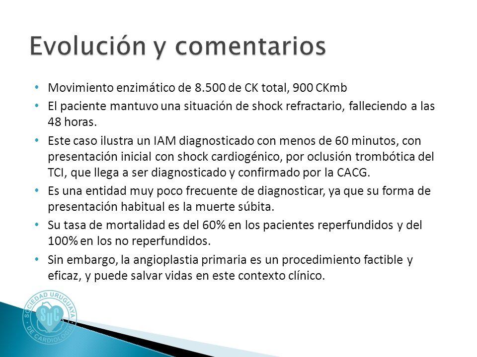 Movimiento enzimático de 8.500 de CK total, 900 CKmb El paciente mantuvo una situación de shock refractario, falleciendo a las 48 horas.