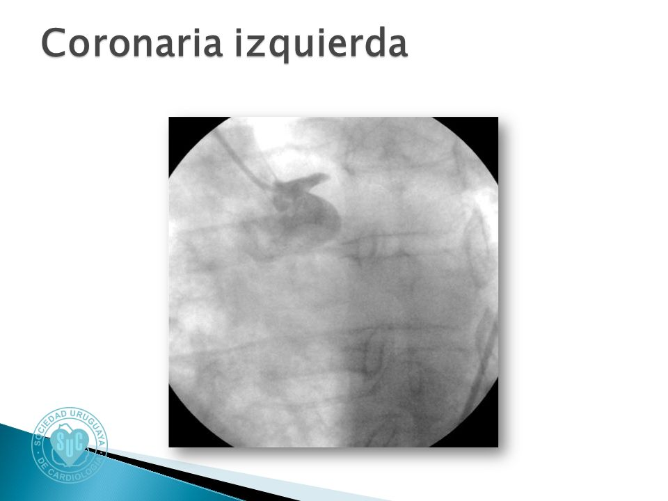 Coronaria izquierda
