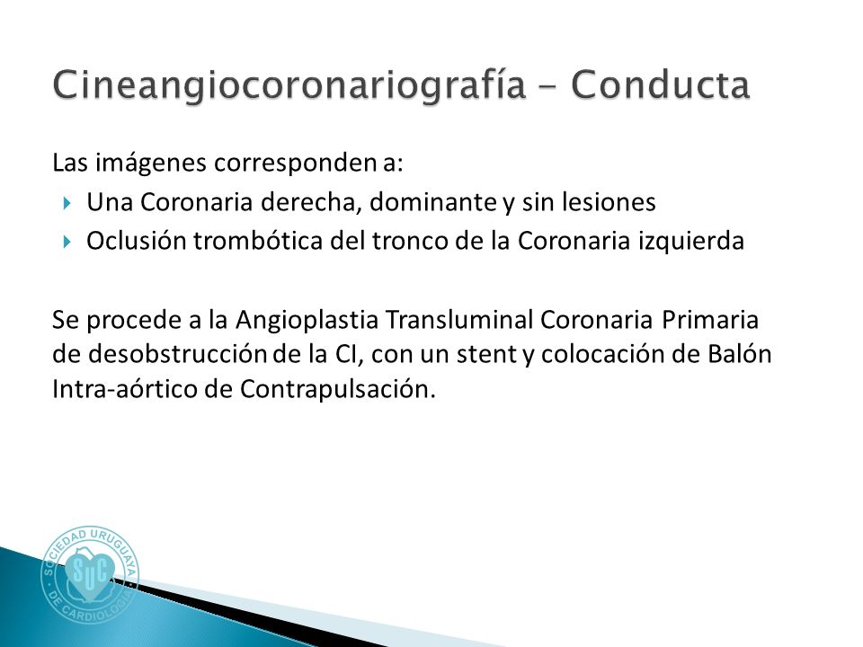 Las imágenes corresponden a: Una Coronaria derecha, dominante y sin lesiones Oclusión trombótica del tronco de la Coronaria izquierda Se procede a la Angioplastia Transluminal Coronaria Primaria de desobstrucción de la CI, con un stent y colocación de Balón Intra-aórtico de Contrapulsación.