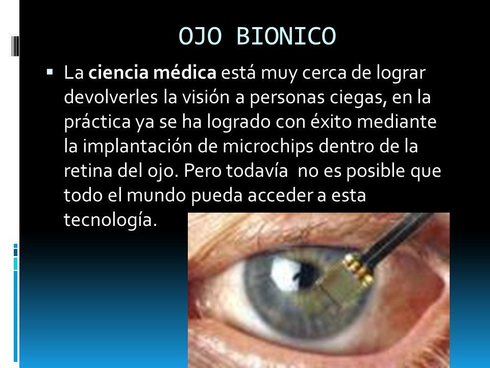 OJO BIONICO La ciencia médica está muy cerca de lograr devolverles la visión a personas ciegas, en la práctica ya se ha logrado con éxito mediante la