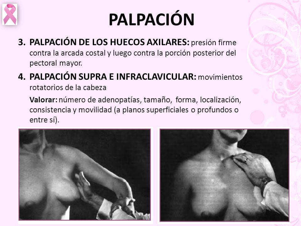 PALPACIÓN 3.PALPACIÓN DE LOS HUECOS AXILARES: presión firme contra la arcada costal y luego contra la porción posterior del pectoral mayor. 4.PALPACIÓ