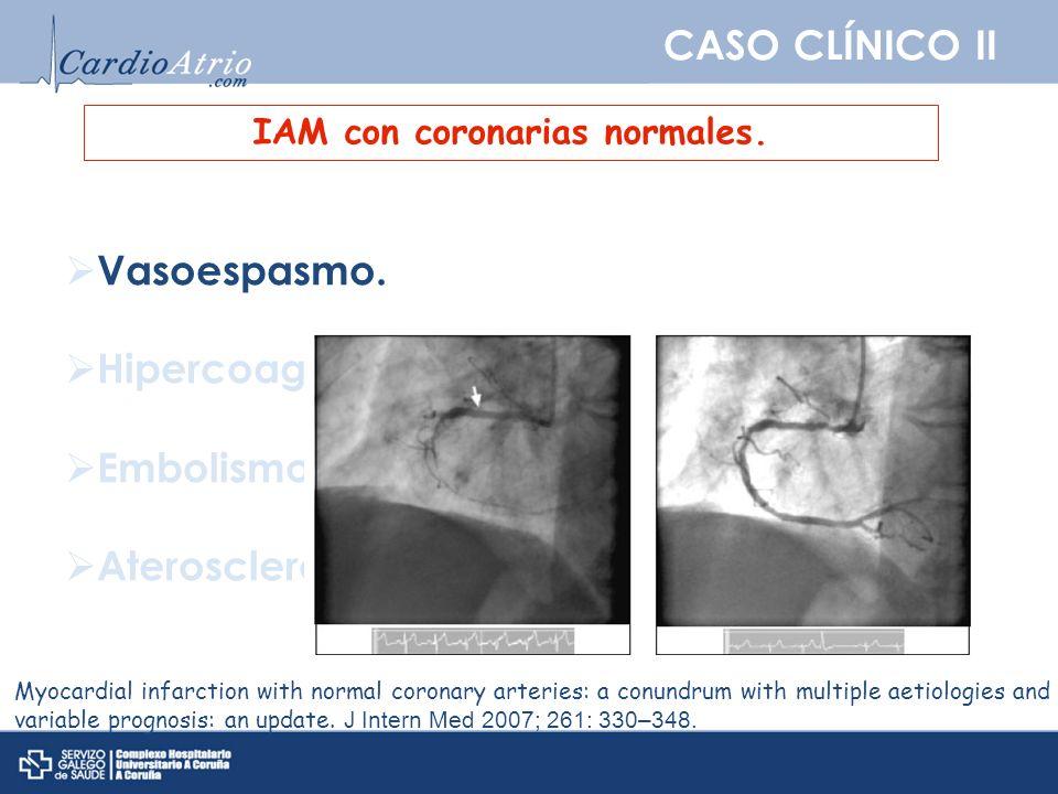 CASO CLÍNICO II IAM con coronarias normales. Vasoespasmo. Hipercoagulabilidad y trombosis. Embolismo. Aterosclerosis oculta. Myocardial infarction wit