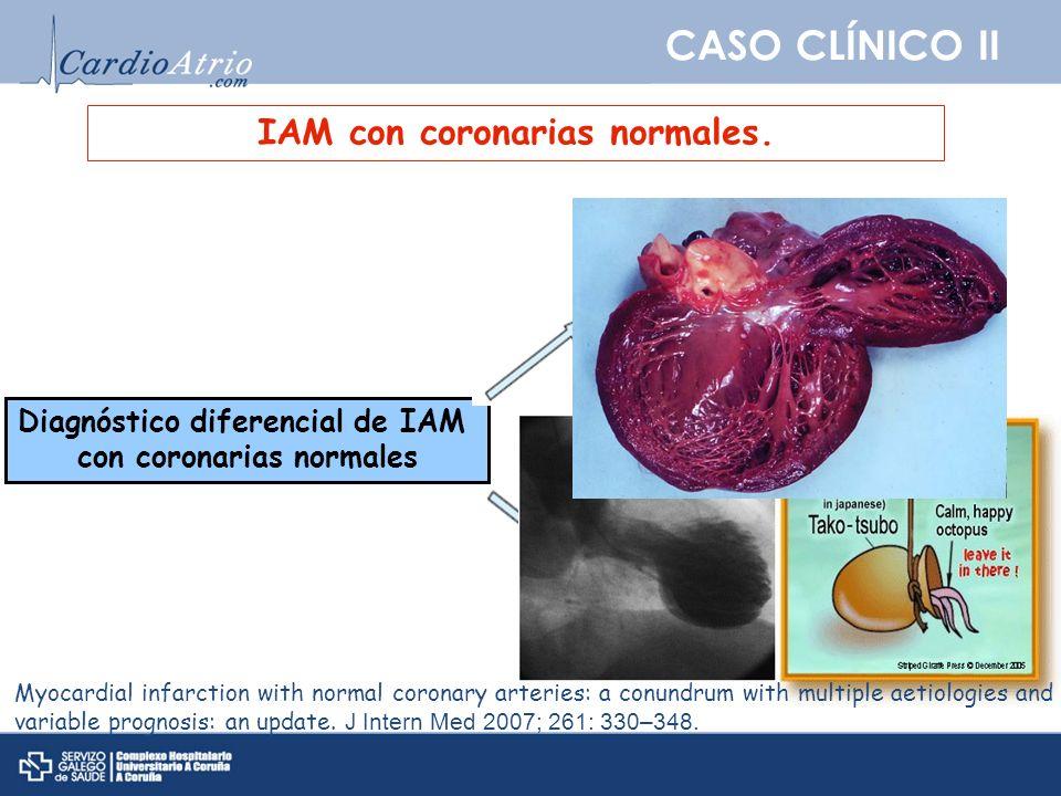 CASO CLÍNICO II IAM con coronarias normales. Diagnóstico diferencial de IAM con coronarias normales Sd. Tako-tsubo Miocarditis Myocardial infarction w