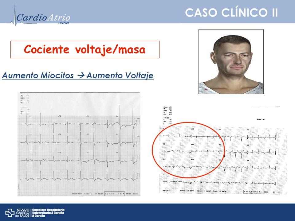 CASO CLÍNICO II Cociente voltaje/masa Aumento Miocitos Aumento Voltaje