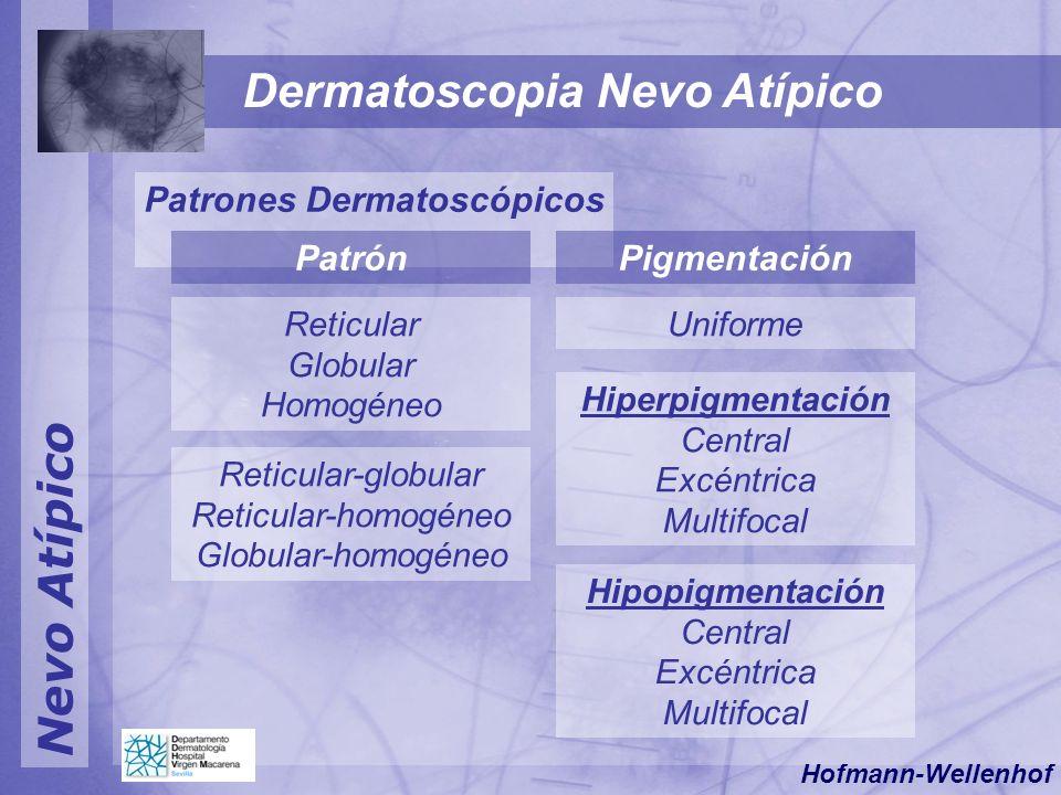 Nevo Atípico Dermatoscopia Nevo Atípico Patrones Dermatoscópicos Reticular Globular Homogéneo PigmentaciónPatrón Uniforme Hipopigmentación Central Exc