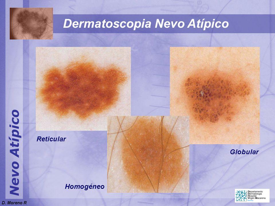 Nevo Atípico Dermatoscopia Nevo Atípico Reticular Globular Homogéneo D. Moreno R