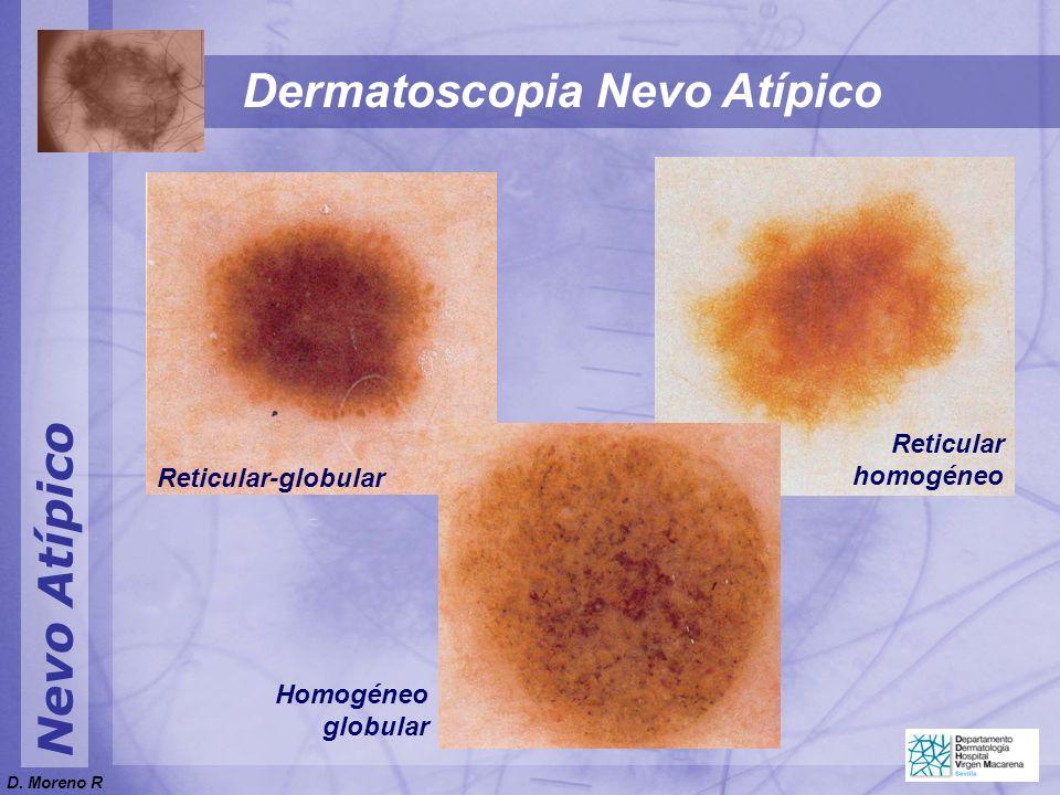 Nevo Atípico Dermatoscopia Nevo Atípico Reticular-globular Reticular homogéneo Homogéneo globular D. Moreno R