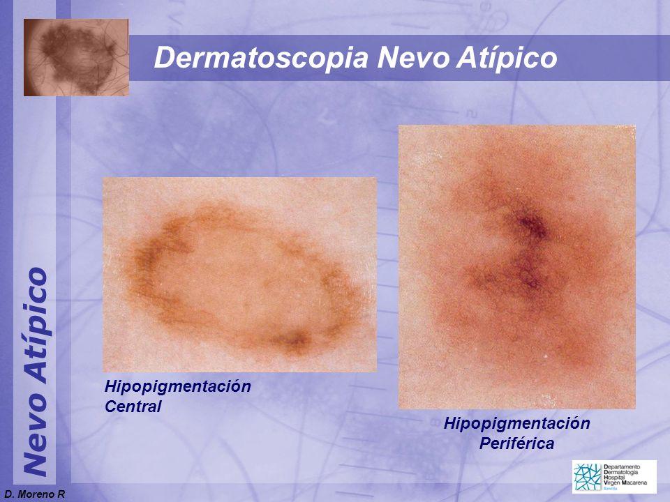 Nevo Atípico Dermatoscopia Nevo Atípico Hipopigmentación Central Hipopigmentación Periférica D. Moreno R