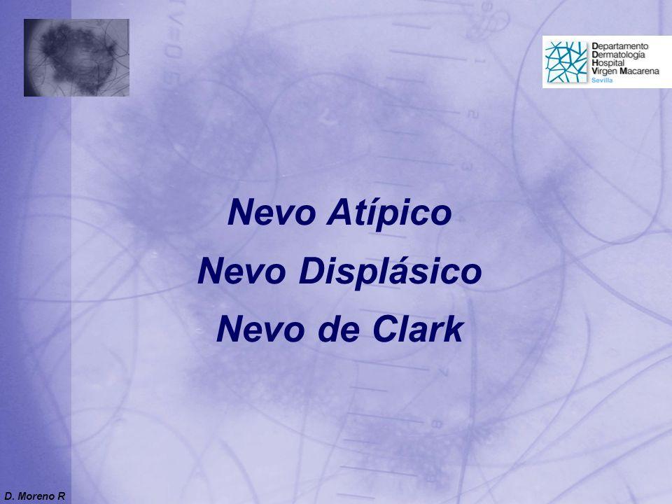 Nevo Atípico Nevo Displásico Nevo de Clark D. Moreno R