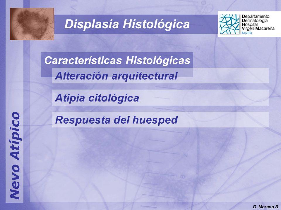 Nevo Atípico Displasia Histológica Características Histológicas Alteración arquitectural Atipia citológica Respuesta del huesped D.