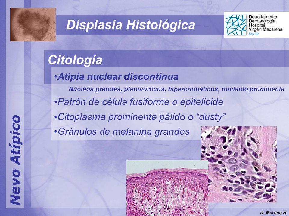 Nevo Atípico Displasia Histológica Citología Atipia nuclear discontinua Núcleos grandes, pleomórficos, hipercromáticos, nucleolo prominente Patrón de