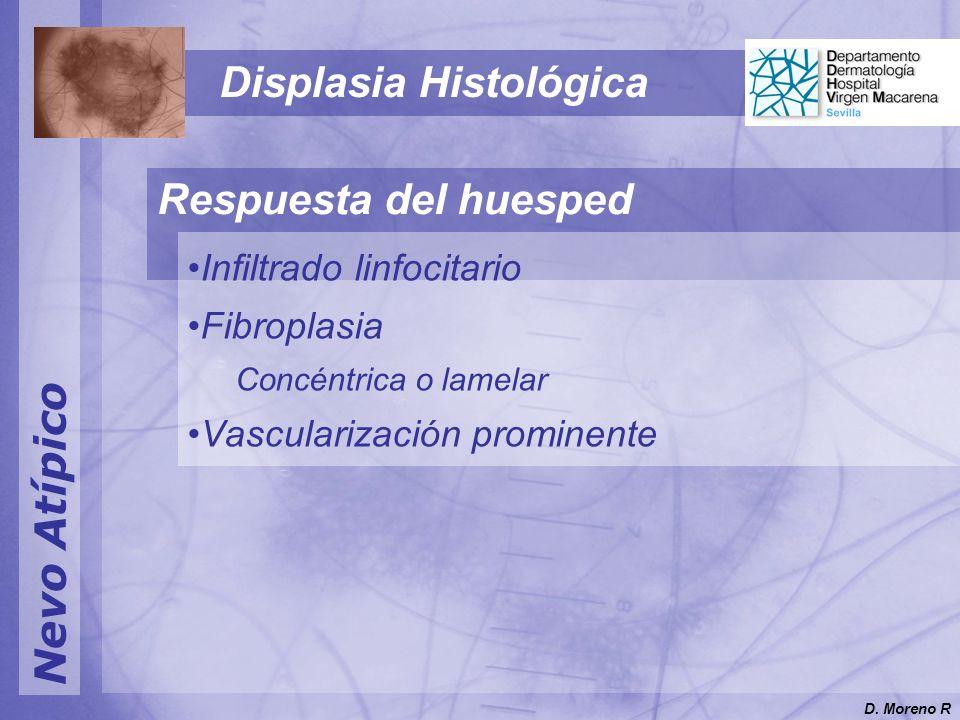 Nevo Atípico Displasia Histológica Respuesta del huesped Infiltrado linfocitario Fibroplasia Concéntrica o lamelar Vascularización prominente D. Moren