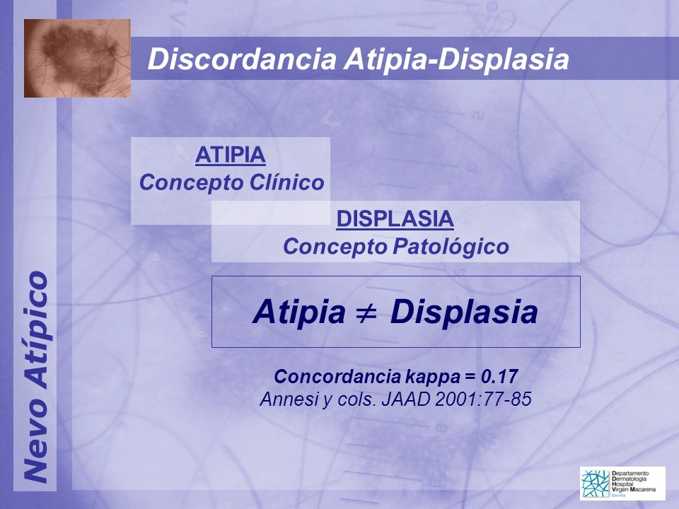 Nevo Atípico Discordancia Atipia-Displasia ATIPIA Concepto Clínico DISPLASIA Concepto Patológico Atipia Displasia Concordancia kappa = 0.17 Annesi y cols.
