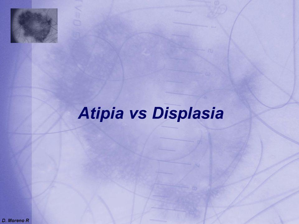 Atipia vs Displasia D. Moreno R