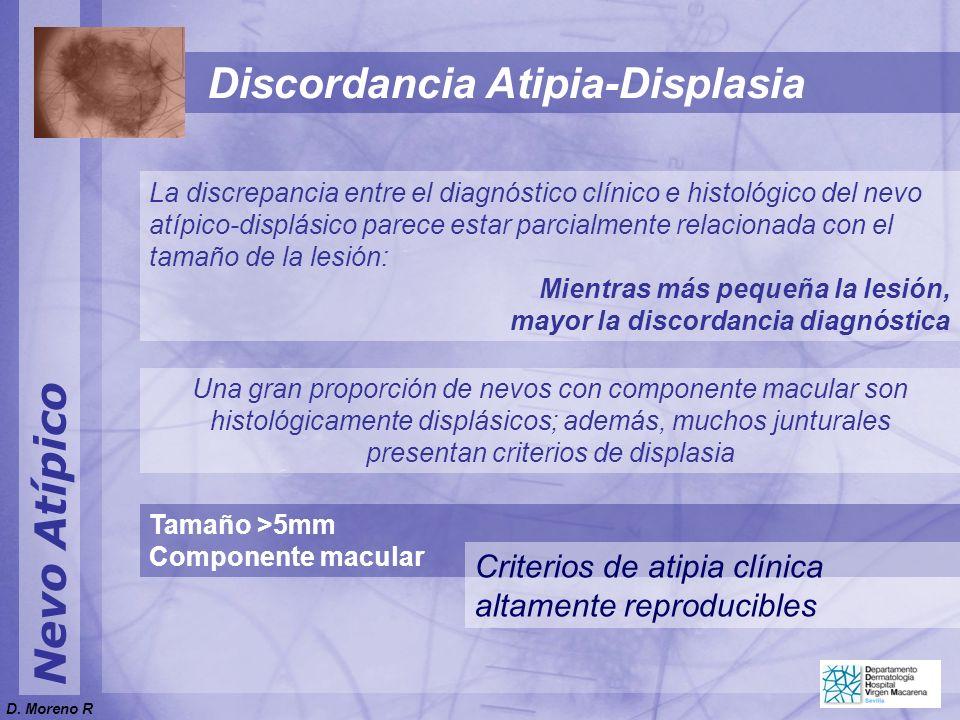 Nevo Atípico La discrepancia entre el diagnóstico clínico e histológico del nevo atípico-displásico parece estar parcialmente relacionada con el tamañ
