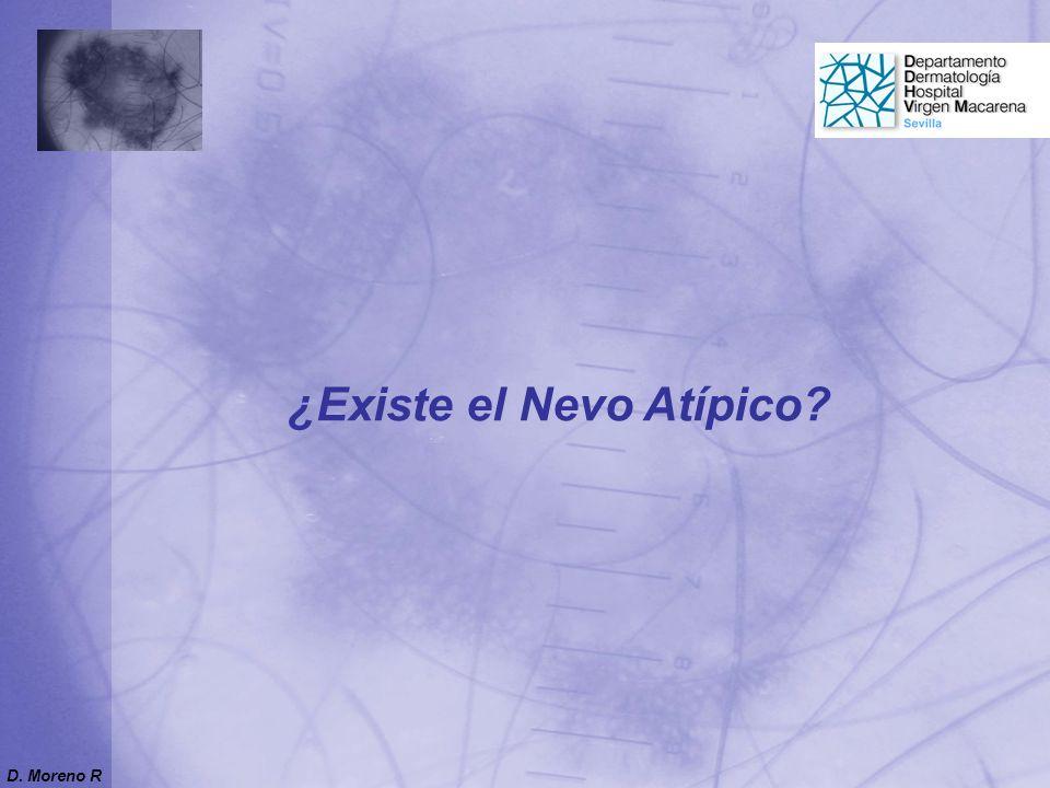 ¿Existe el Nevo Atípico? D. Moreno R