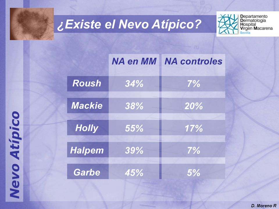 Nevo Atípico Roush Mackie Holly Halpem Garbe NA en MM 34% 38% 55% 39% 45% NA controles 7% 20% 17% 7% 5% ¿Existe el Nevo Atípico? D. Moreno R