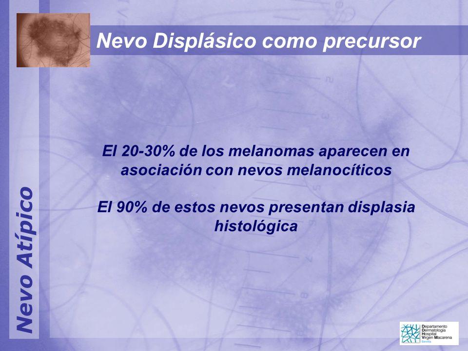 Nevo Atípico Nevo Displásico como precursor El 20-30% de los melanomas aparecen en asociación con nevos melanocíticos El 90% de estos nevos presentan displasia histológica