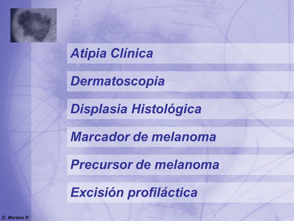Nevo Atípico Displasia Histológica Citología Atipia nuclear discontinua Núcleos grandes, pleomórficos, hipercromáticos, nucleolo prominente Patrón de célula fusiforme o epitelioide Citoplasma prominente pálido o dusty Gránulos de melanina grandes D.