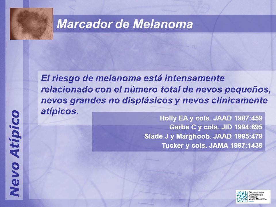 Nevo Atípico Marcador de Melanoma El riesgo de melanoma está intensamente relacionado con el número total de nevos pequeños, nevos grandes no displásicos y nevos clínicamente atípicos.
