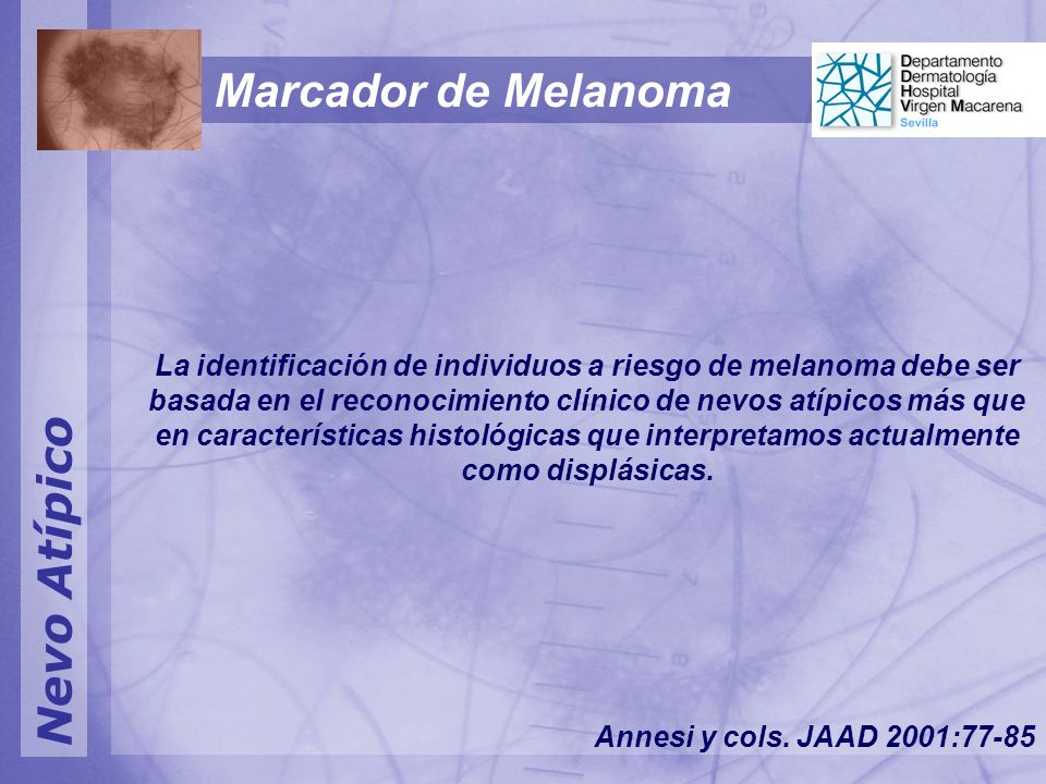 Nevo Atípico La identificación de individuos a riesgo de melanoma debe ser basada en el reconocimiento clínico de nevos atípicos más que en características histológicas que interpretamos actualmente como displásicas.