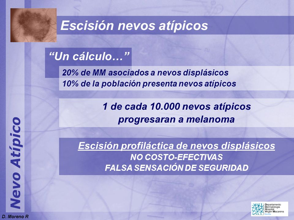Nevo Atípico Escisión nevos atípicos Un cálculo… 1 de cada 10.000 nevos atípicos progresaran a melanoma Escisión profiláctica de nevos displásicos NO