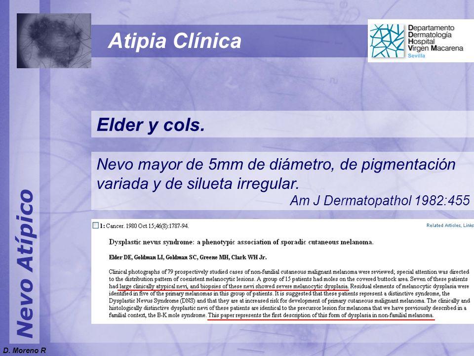 Nevo Atípico Atipia Clínica Elder y cols. Nevo mayor de 5mm de diámetro, de pigmentación variada y de silueta irregular. Am J Dermatopathol 1982:455 D