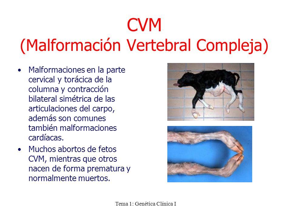 Tema 1: Genética Clínica I CVM (Malformación Vertebral Compleja) Malformaciones en la parte cervical y torácica de la columna y contracción bilateral