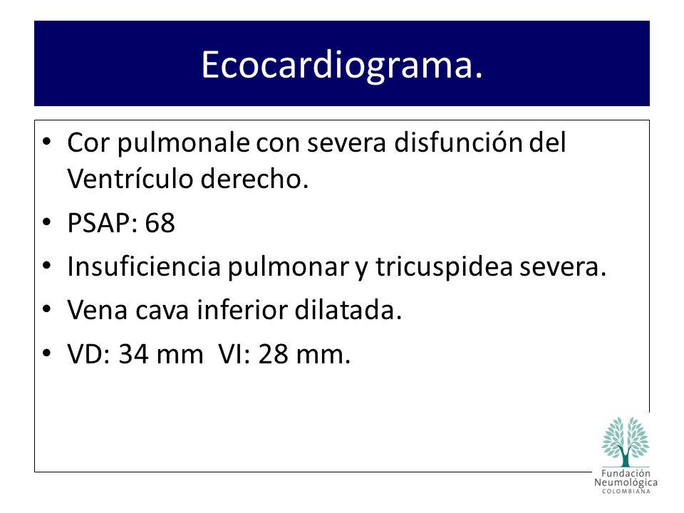 Cor pulmonale con severa disfunción del Ventrículo derecho.
