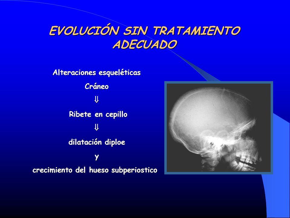 Alteraciones esqueléticas Cráneo Ribete en cepillo Ribete en cepillo dilatación diploe y crecimiento del hueso subperiostico crecimiento del hueso sub