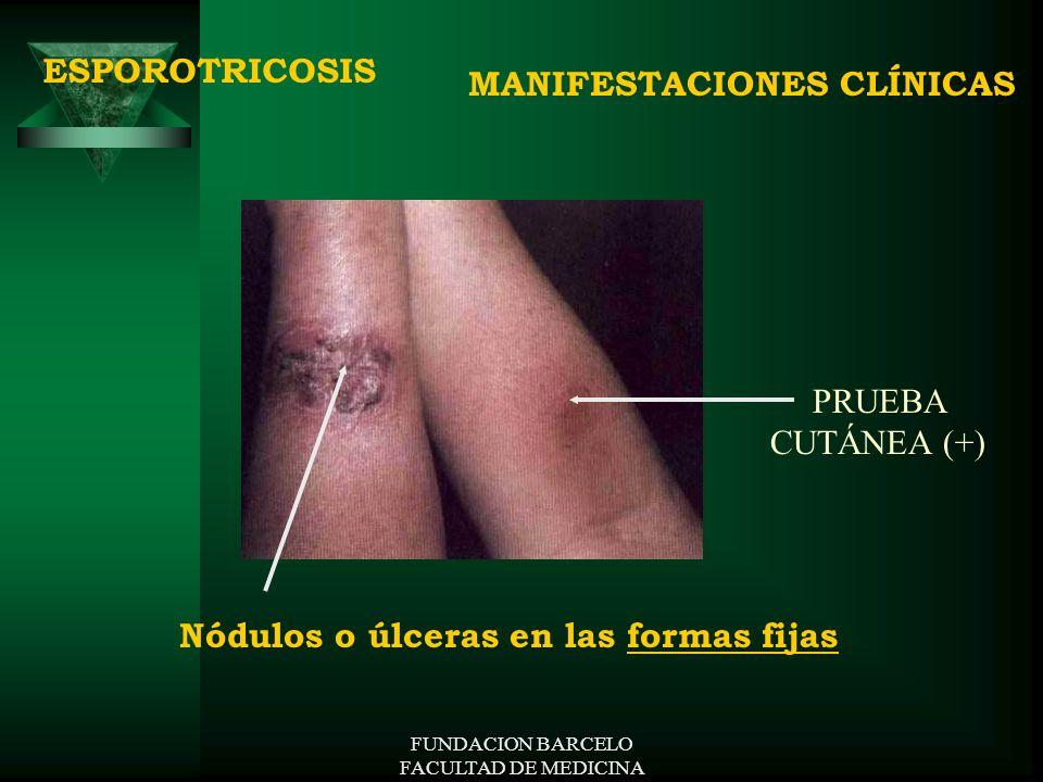 FUNDACION BARCELO FACULTAD DE MEDICINA MANIFESTACIONES CLÍNICAS ESPOROTRICOSIS Nódulos o úlceras en las formas fijas PRUEBA CUTÁNEA (+)