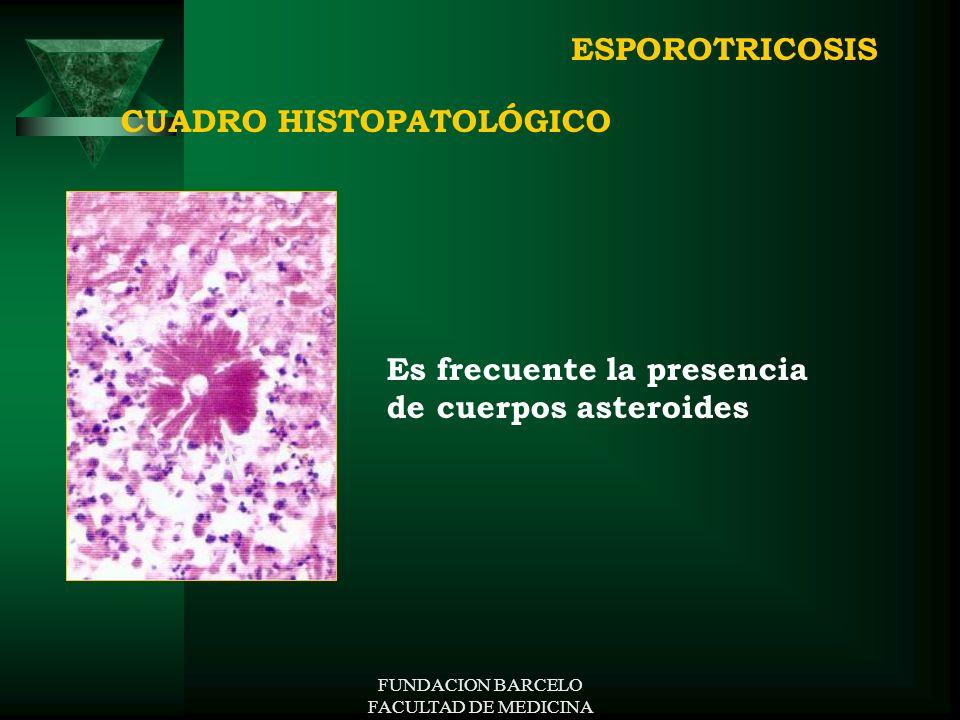 FUNDACION BARCELO FACULTAD DE MEDICINA CUADRO HISTOPATOLÓGICO Es frecuente la presencia de cuerpos asteroides ESPOROTRICOSIS