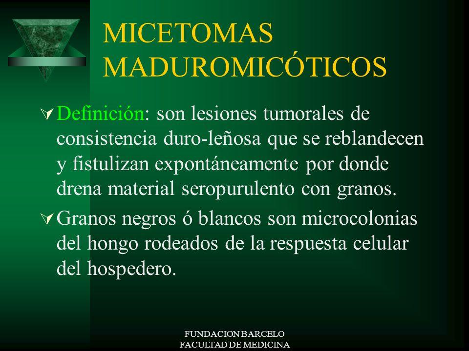FUNDACION BARCELO FACULTAD DE MEDICINA MICETOMAS MADUROMICÓTICOS Definición: son lesiones tumorales de consistencia duro-leñosa que se reblandecen y f