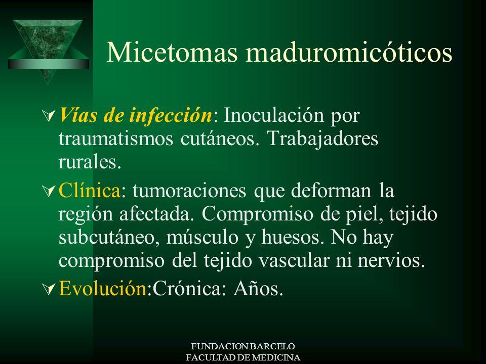 FUNDACION BARCELO FACULTAD DE MEDICINA Micetomas maduromicóticos Vías de infección: Inoculación por traumatismos cutáneos. Trabajadores rurales. Clíni