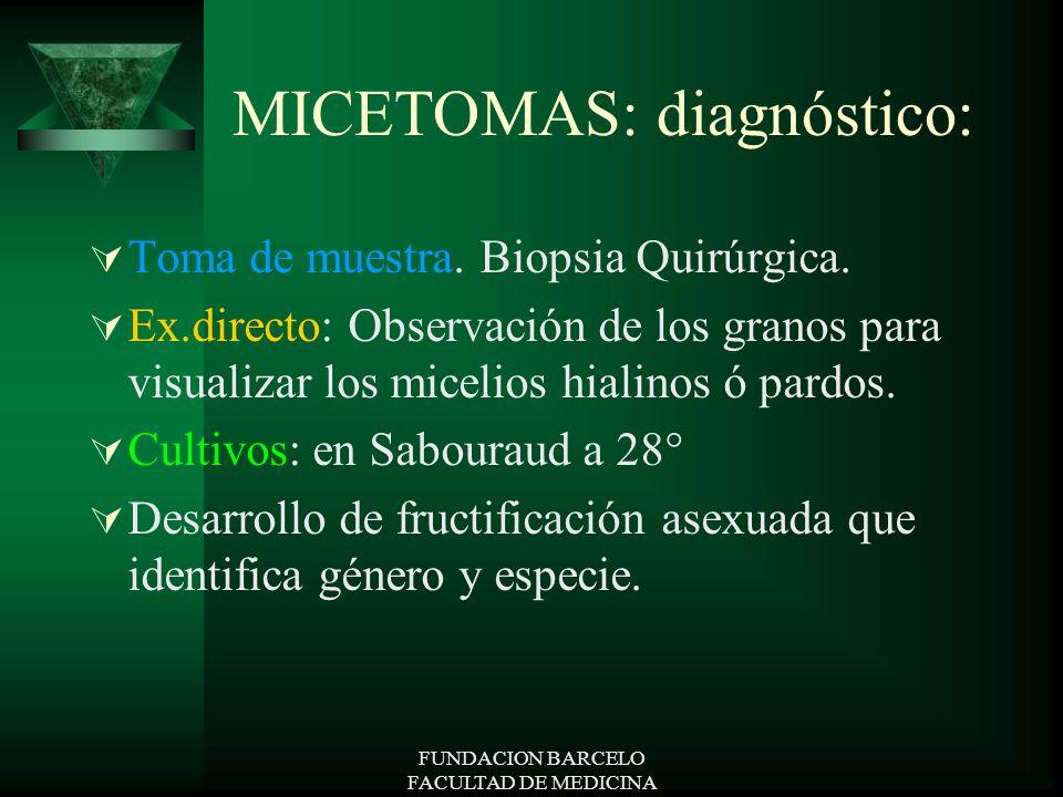 FUNDACION BARCELO FACULTAD DE MEDICINA MICETOMAS: diagnóstico: Toma de muestra. Biopsia Quirúrgica. Ex.directo: Observación de los granos para visuali