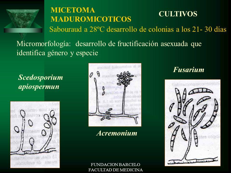 FUNDACION BARCELO FACULTAD DE MEDICINA Micromorfología: desarrollo de fructificación asexuada que identifica género y especie MICETOMA MADUROMICOTICOS