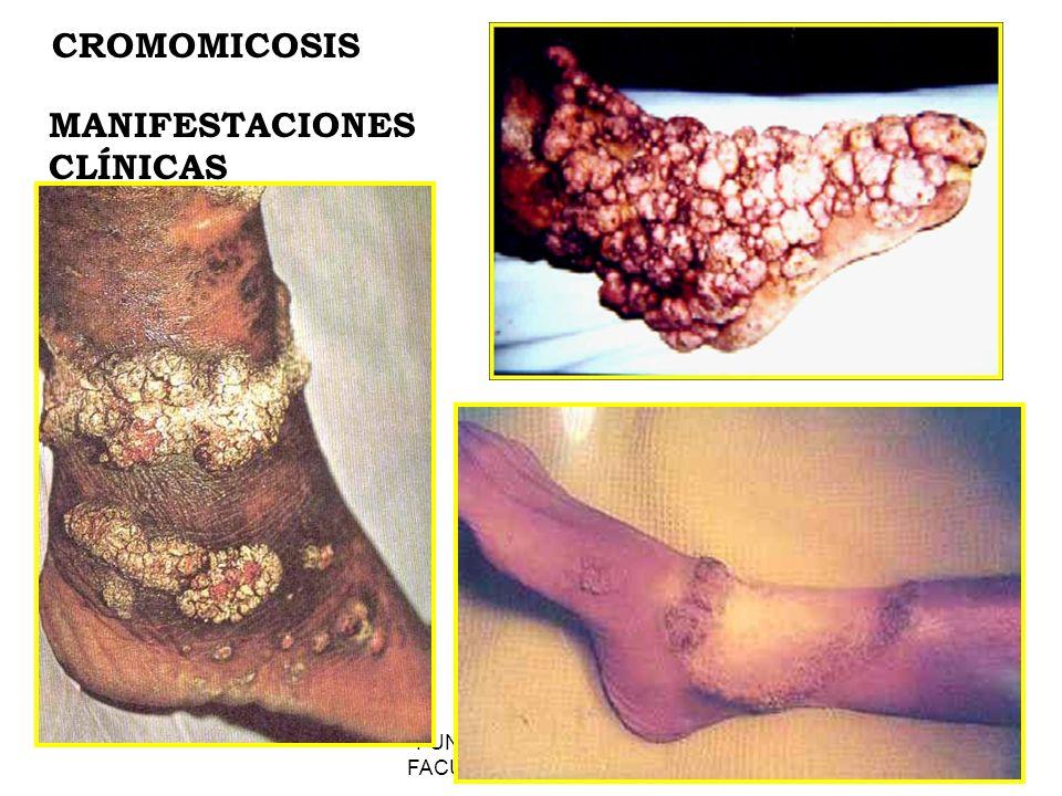 FUNDACION BARCELO FACULTAD DE MEDICINA CROMOMICOSIS MANIFESTACIONES CLÍNICAS