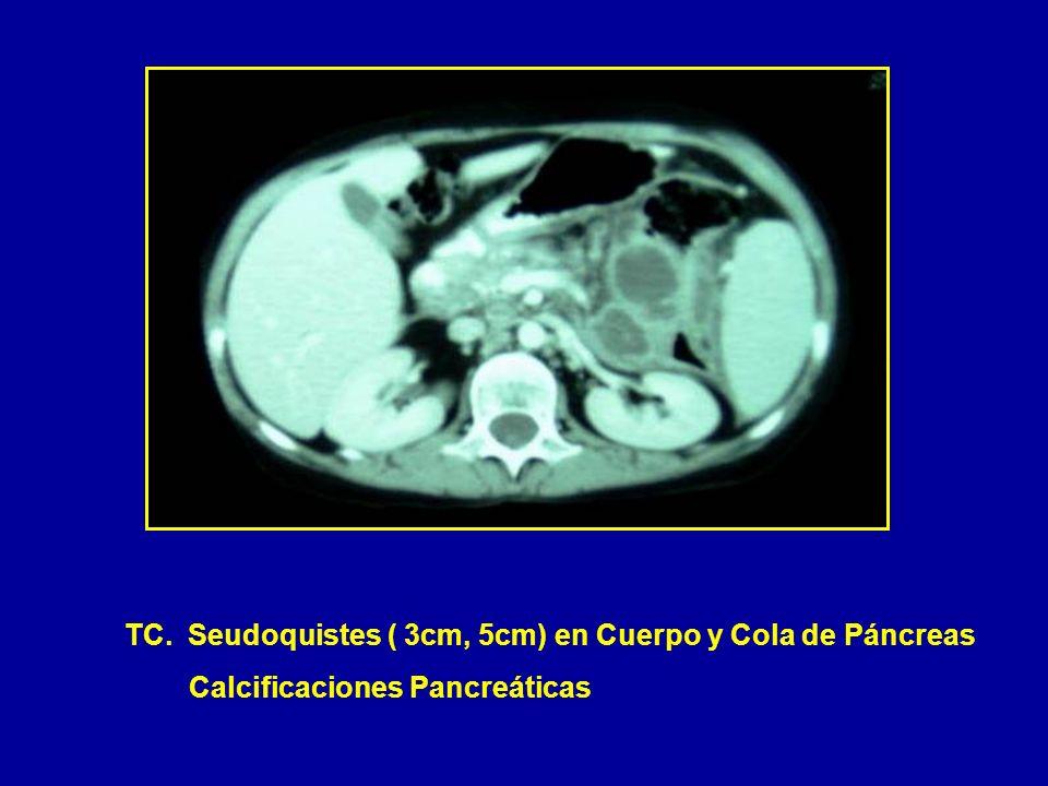 TC. Seudoquistes ( 3cm, 5cm) en Cuerpo y Cola de Páncreas Calcificaciones Pancreáticas